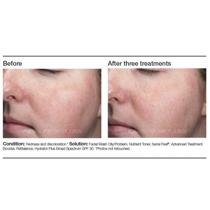 before & after pea Sensi peel